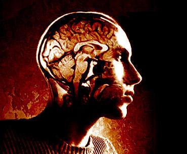 Human Brain Andrew Mason CC-BY-2.0 via Wikimedia Commons